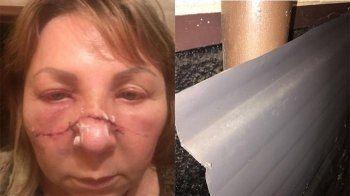 Главе отделения «Яблока» в Ленинградской области изуродовали лицо