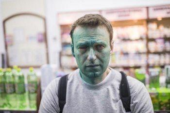 Навальный получил химический ожог глаза в результате нападения с зелёнкой