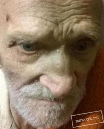 Правозащитники Нижнего Тагила показали шокирующие фото старика после вызволения из наркопритона. «Он всё равно прячет хлеб под подушкой»