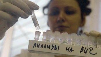 В Свердловской области на четверть выросло количество ВИЧ-инфицированных
