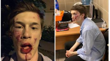 Полиция начала проверку по факту избиения участника «московского дела» Егора Жукова