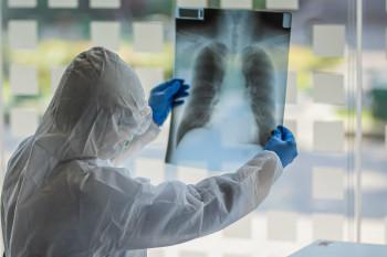 В Свердловской области 139 новых случаев COVID-19. В Нижнем Тагиле заболели 10 человек