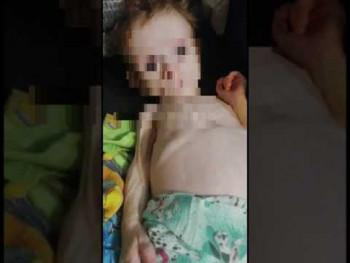 Отец отказался от девочки из Карпинска, которую мать с рождения держала в шкафу