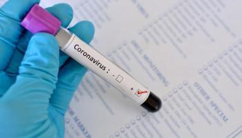 Жительницу Свердловской области оштрафовали на 25 тысяч рублей за отказ от госпитализации после положительного теста на коронавирус