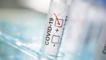 Роспотребнадзор пообещал выдавать результат теста на коронавирус через 24 часа