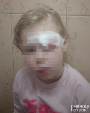 В Нижнем Тагиле прокуратура начала проверку по факту травмирования 4-летней девочки