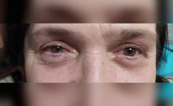 «Она брызнула мне в глаза антисептиком». Сотрудница компании «Рифей» в Нижнем Тагиле обвиняет начальницу в причинении вреда здоровью за отказ уволиться