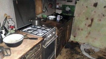 В Нижнем Тагиле мужчина с серьёзными ожогами госпитализирован после пожара