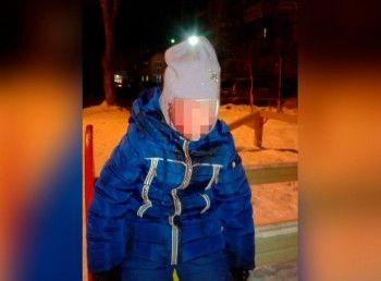 В Среднеуральске собака укусила за лицо двухлетнюю девочку