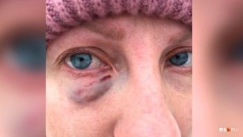 В Екатеринбурге девушка на Matiz жестоко избила маму с коляской и протащила её на капоте (ВИДЕО)