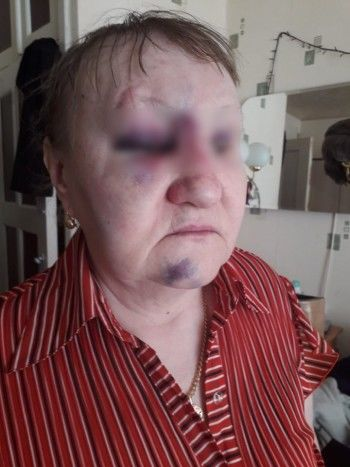 В Нижнем Тагиле автоледи избила пенсионерку за переход дороги в неположенном месте