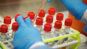 В России зарегистрировали 302 новых случая заражения коронавирусом