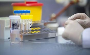 «Инвитро» отказалась от идеи тестировать на коронавирус всех желающих