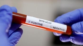 «Собеседник» обнаружил связи производителя тестов накоронавирус сокружением Путина