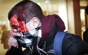 «Нанёс себе травмы головы, испачкал своей кровью шапку». Житель Нижнего Тагила инсценировал разбойное нападение, чтобы вернуть проданный автомобиль