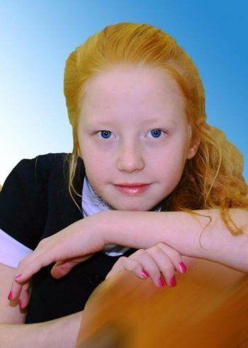 «Уралочка-НТМК» попросила помочь 10-летней Ульяне Яриной. Для спасения жизни юной волейболистки, больной раком, требуется 2 млн рублей
